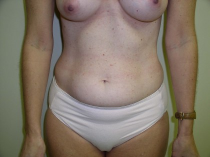 Liposuction Before & After Patient #323
