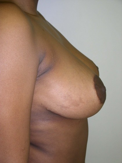 Breast Reduction Before & After Patient #199