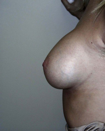 Breast Augmentation Before & After Patient #75