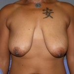 Breast Lift Before & After Patient #159