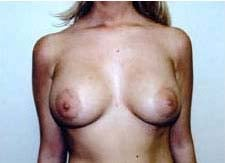 Breast Augmentation Before & After Patient #80