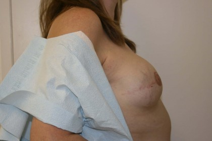 Breast Reconstruction Before & After Patient #173