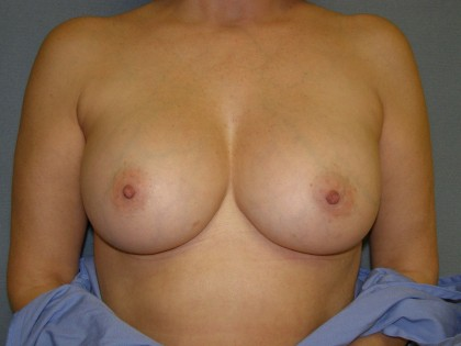 Breast Augmentation Before & After Patient #83