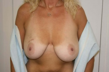 Breast Reconstruction Before & After Patient #181