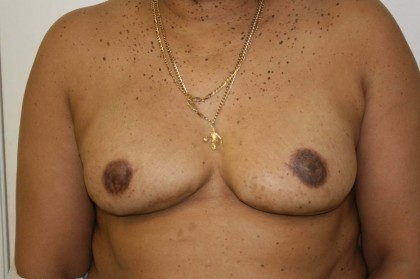 Breast Reconstruction Before & After Patient #184
