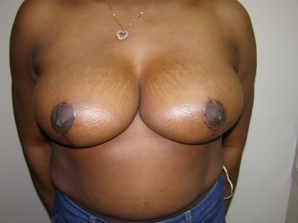 Breast Reduction Before & After Patient #206