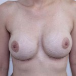 Breast Augmentation Before & After Patient #187