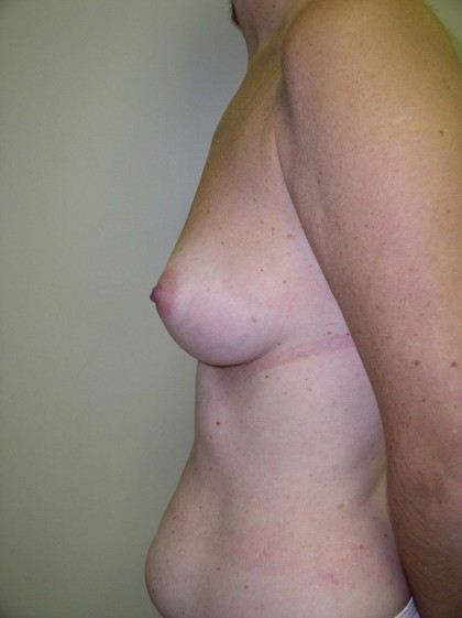 Breast Augmentation Before & After Patient #89
