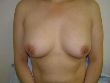 Breast Reconstruction Before & After Patient #190