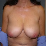 Breast Reduction Before & After Patient #212