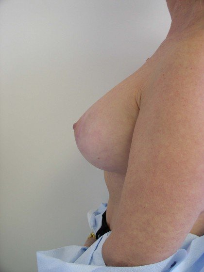 Breast Lift Before & After Patient #166