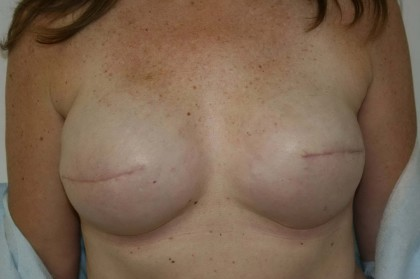 Breast Reconstruction Before & After Patient #193