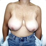 Breast Reduction Before & After Patient #221