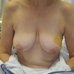 Breast Reconstruction Before & After Patient #196