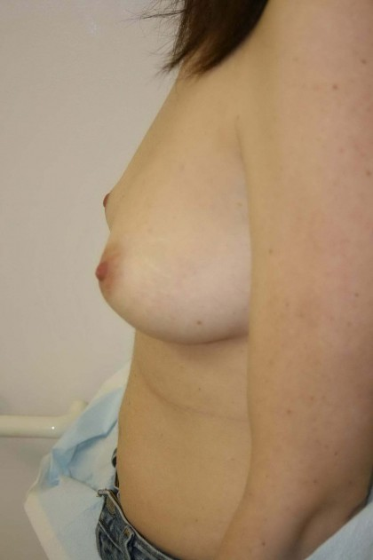 Breast Augmentation Before & After Patient #96