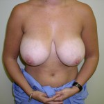 Breast Reduction Before & After Patient #229