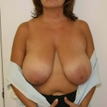 Breast Reduction Before & After Patient #236