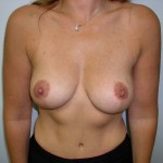 Breast Augmentation Before & After Patient #103