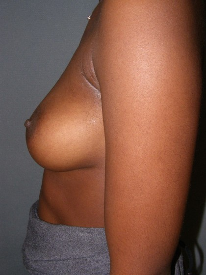 Breast Augmentation Before & After Patient #107