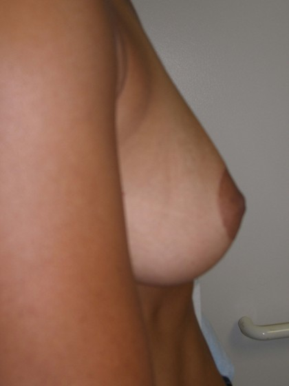 Breast Augmentation Before & After Patient #116