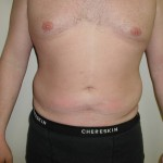 Liposuction Before & After Patient #338
