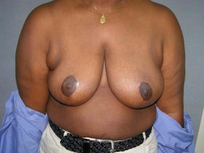Breast Reduction Before & After Patient #244