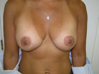 Breast Augmentation Before & After Patient #125