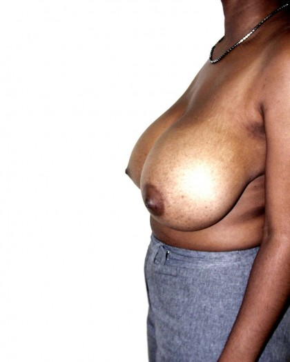 Breast Reduction Before & After Patient #252