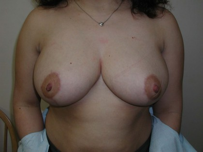 Breast Reduction Before & After Patient #257
