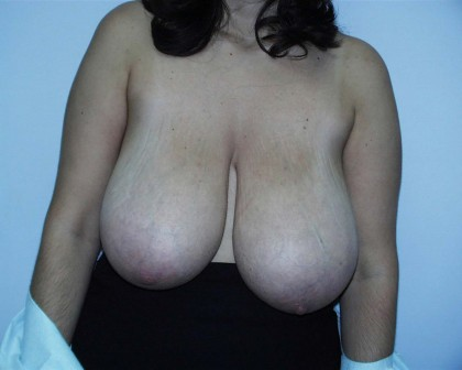 Breast Reduction Before & After Patient #264