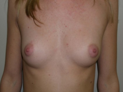 Breast Augmentation Before & After Patient #132