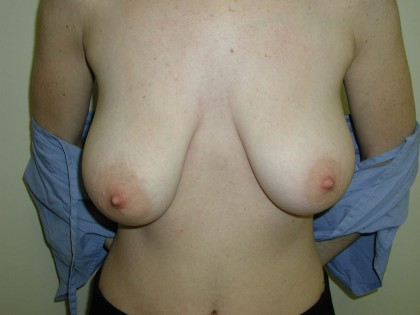 Breast Reduction Before & After Patient #269