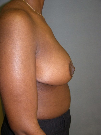 Breast Reduction Before & After Patient #277