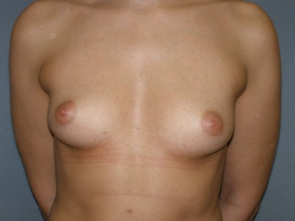 Breast Augmentation Before & After Patient #140