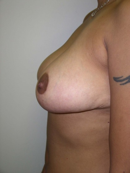 Breast Reduction Before & After Patient #285