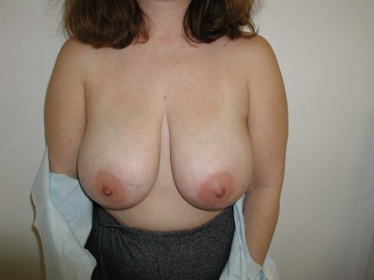 Breast Reduction Before & After Patient #292