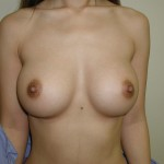 Breast Augmentation Before & After Patient #145
