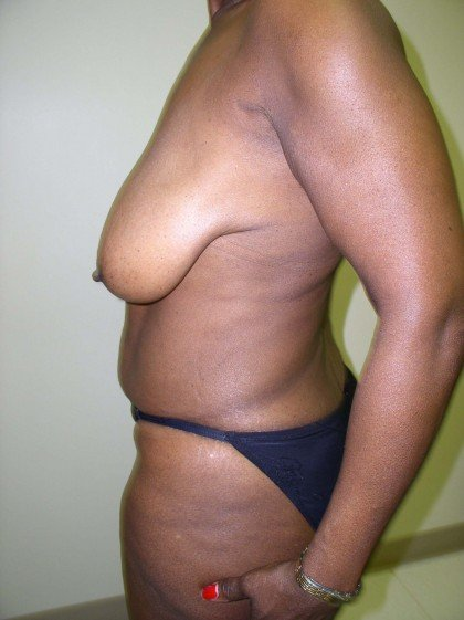 Breast Reduction Before & After Patient #297