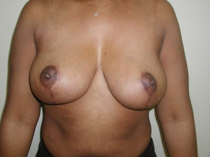 Breast Reduction Before & After Patient #305