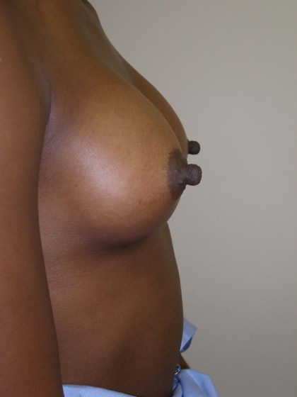 Breast Augmentation Before & After Patient #152