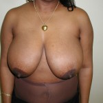 Breast Reduction Before & After Patient #308