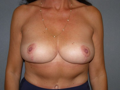 Breast Lift Before & After Patient #4011