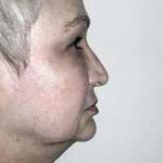 Facelift Before & After Patient #4377