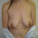 Breast Lift Before & After Patient #4980