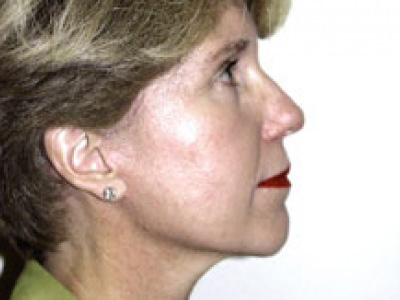 Facelift Before & After Patient #4360