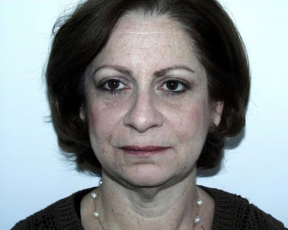 Facelift Before & After Patient #4983