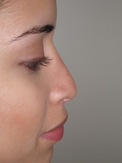 Rhinoplasty Before & After Patient #4128