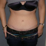 Tummy Tuck Before & After Patient #4023