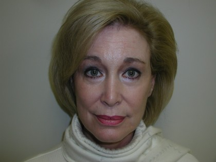 Facelift Before & After Patient #4988