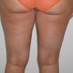 Liposuction Before & After Patient #3960